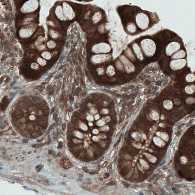 NAPRT1 Antibody in Immunohistochemistry (IHC)