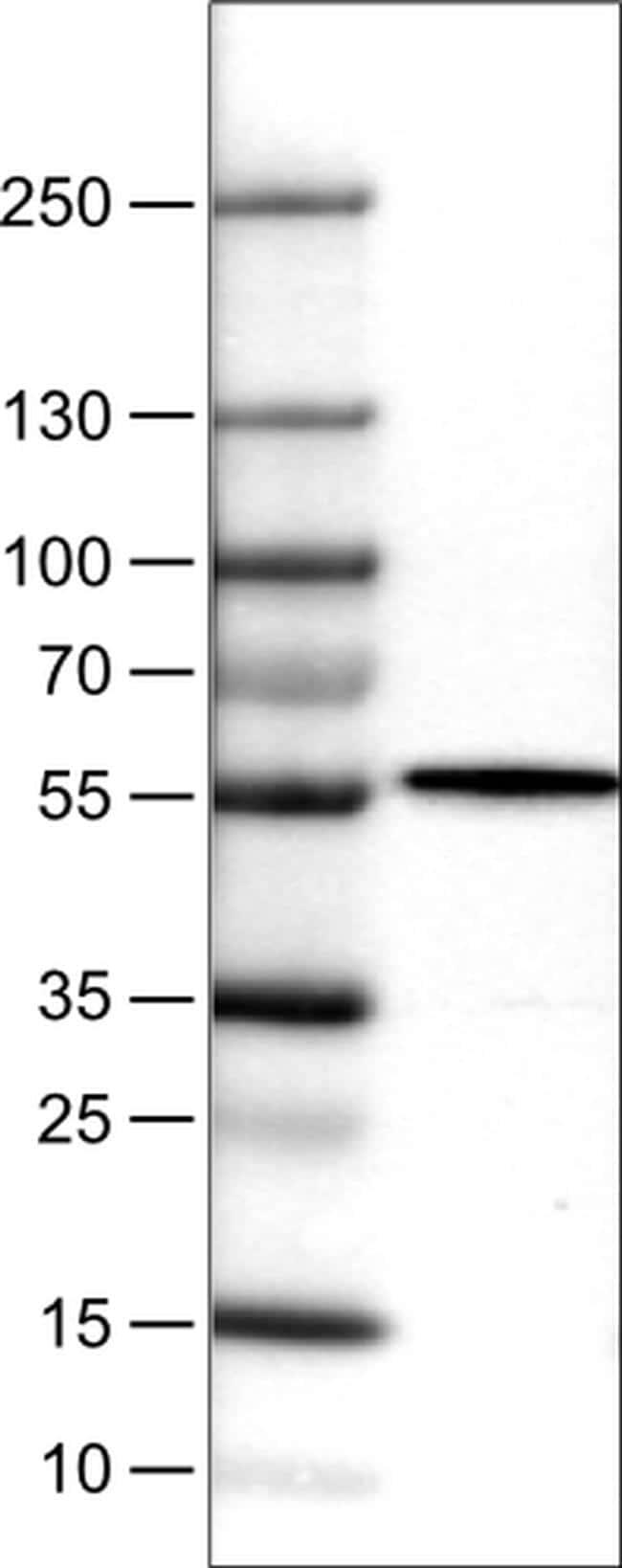 NAPRT1 Antibody in Western Blot (WB)