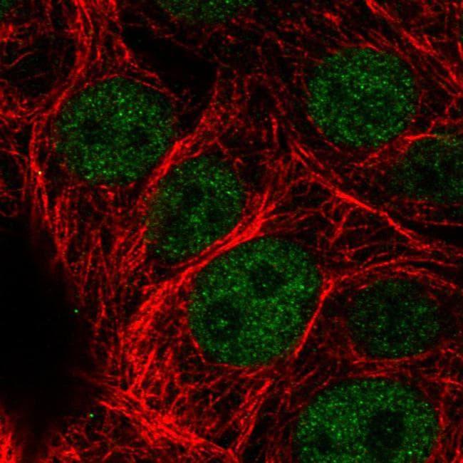 ATRX Antibody in Immunofluorescence (IF)