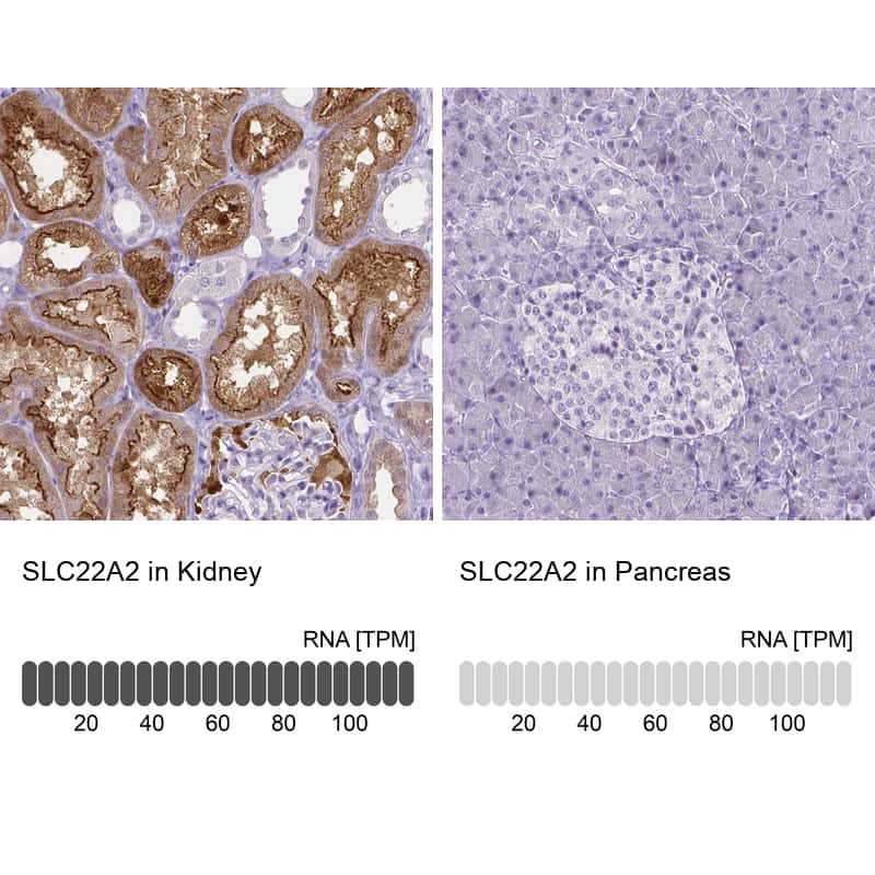 SLC22A2 Antibody in Relative expression