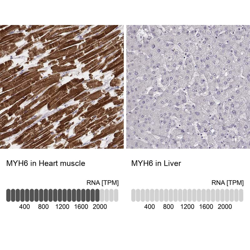 MYH6 Antibody in Relative expression