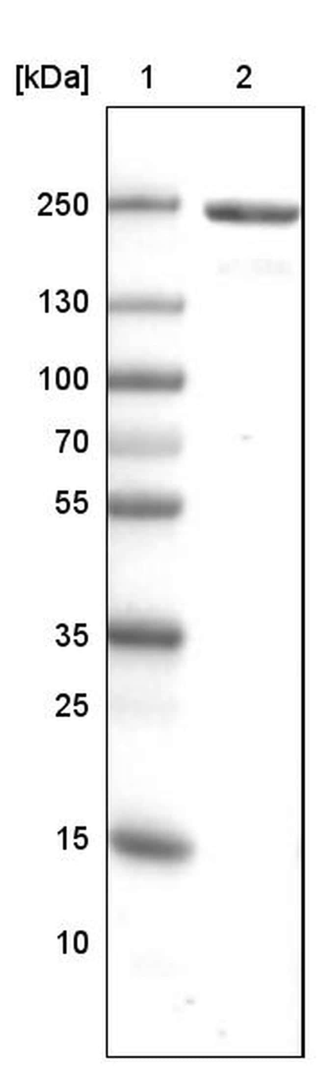 MYH6 Antibody in Western Blot (WB)