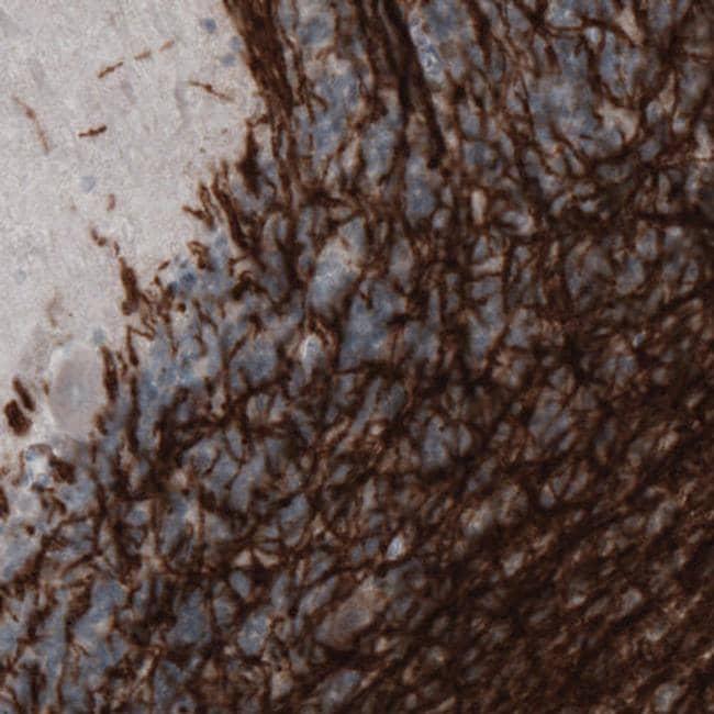 MOG Antibody in Immunohistochemistry (IHC)