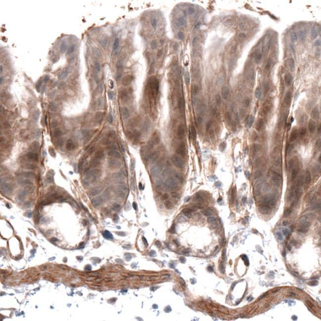 Laminin alpha-4 Antibody in Immunohistochemistry (IHC)