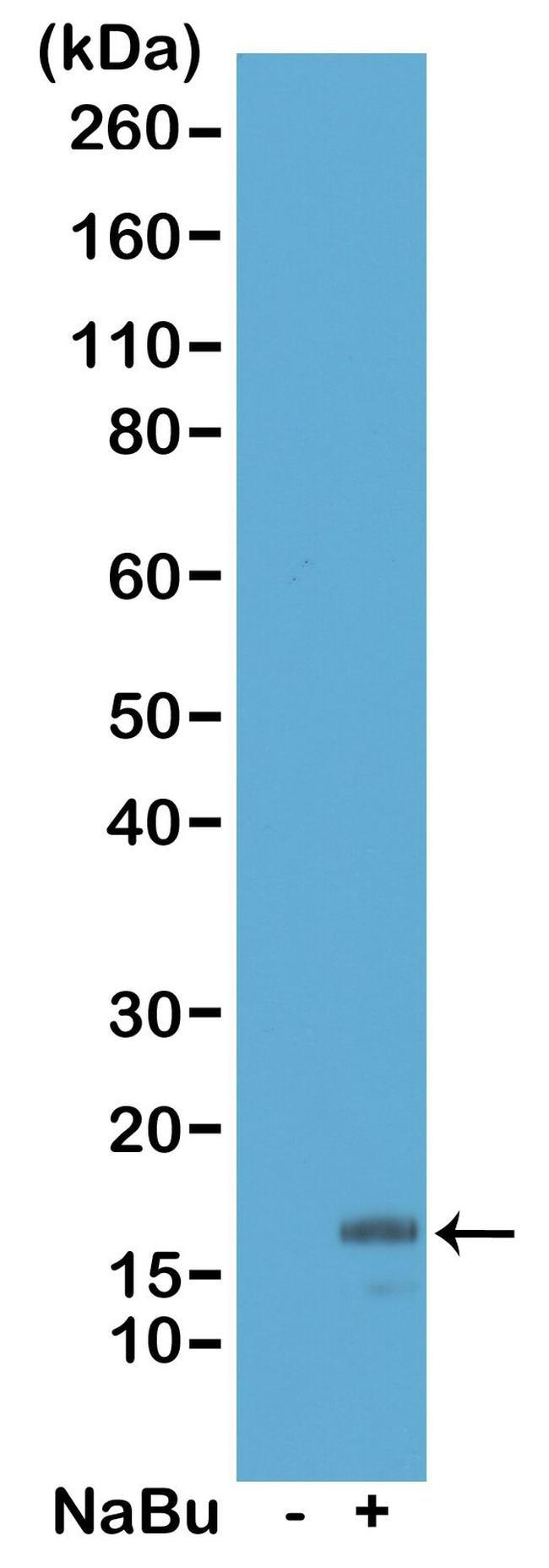 Acetyl-Histone H3 (Lys18) Antibody in Western Blot (WB)