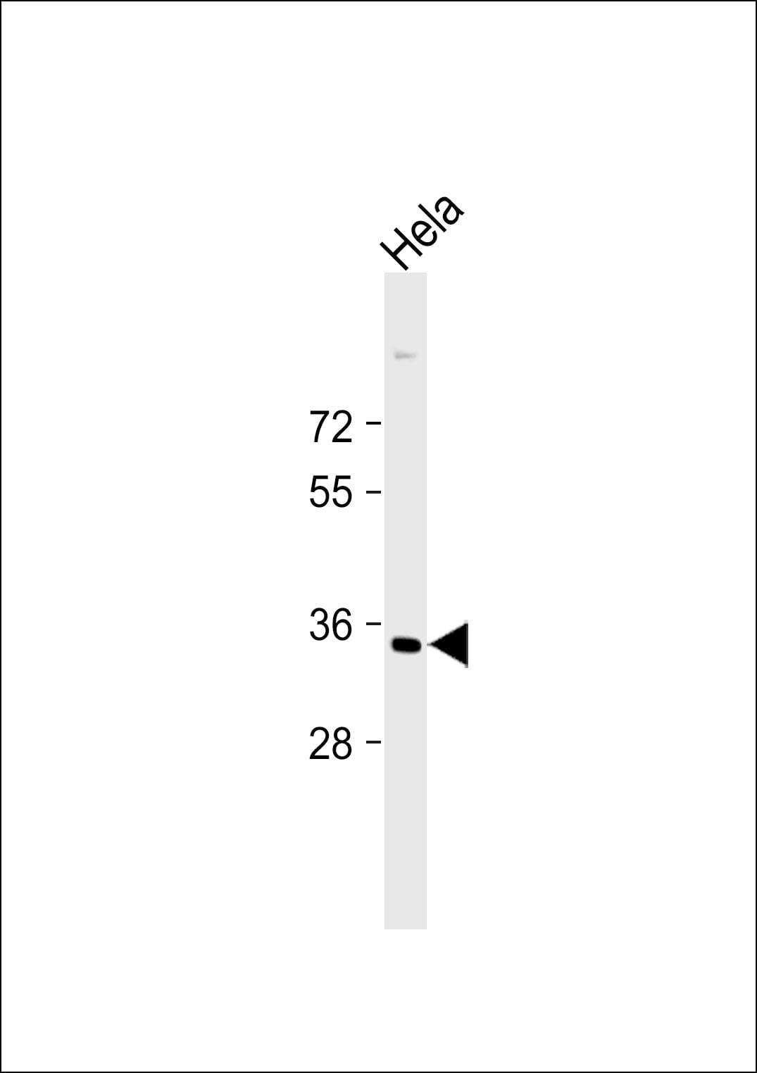STRA8 Antibody in Western Blot (WB)
