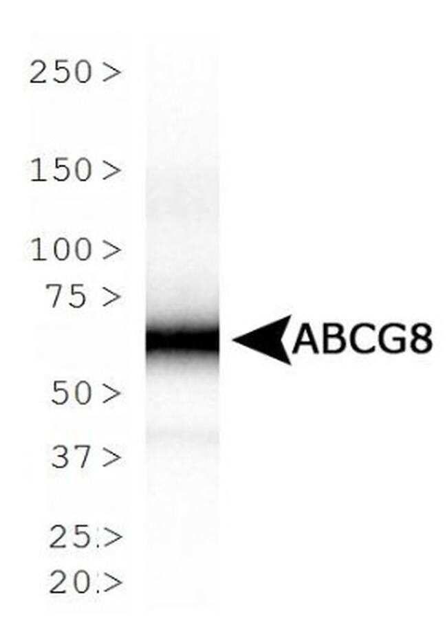 ABCG8 Antibody in Western Blot (WB)