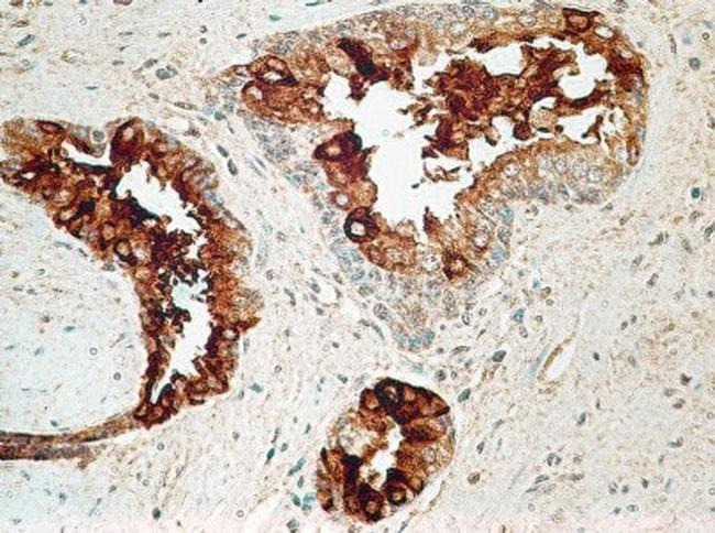 TCCR Antibody in Immunohistochemistry (Paraffin) (IHC (P))