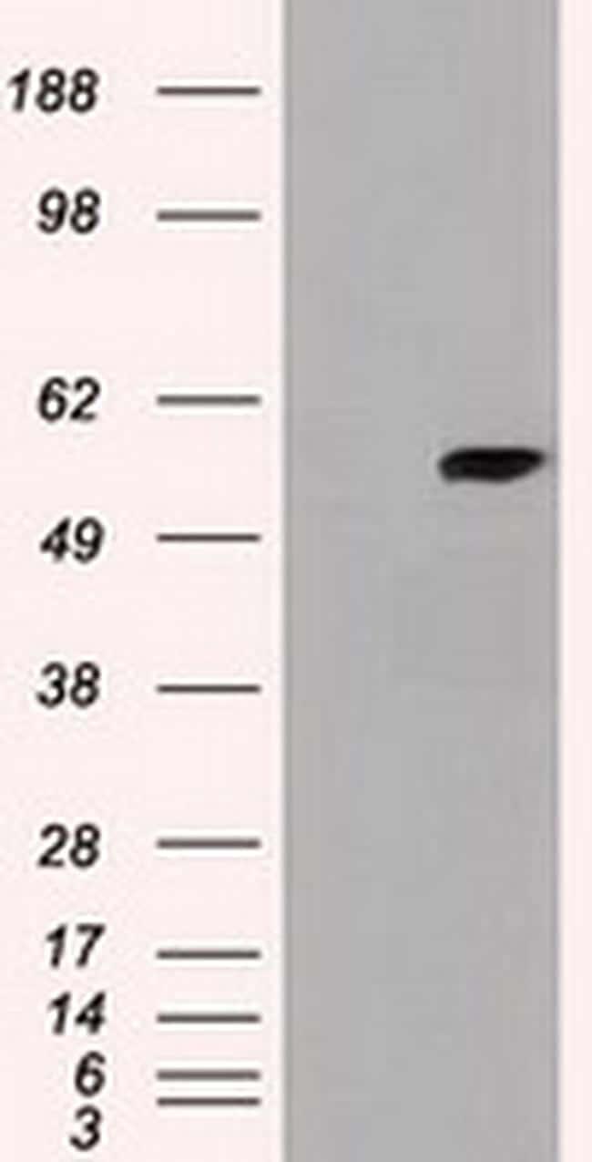 CYP7B1 Antibody in Western Blot (WB)