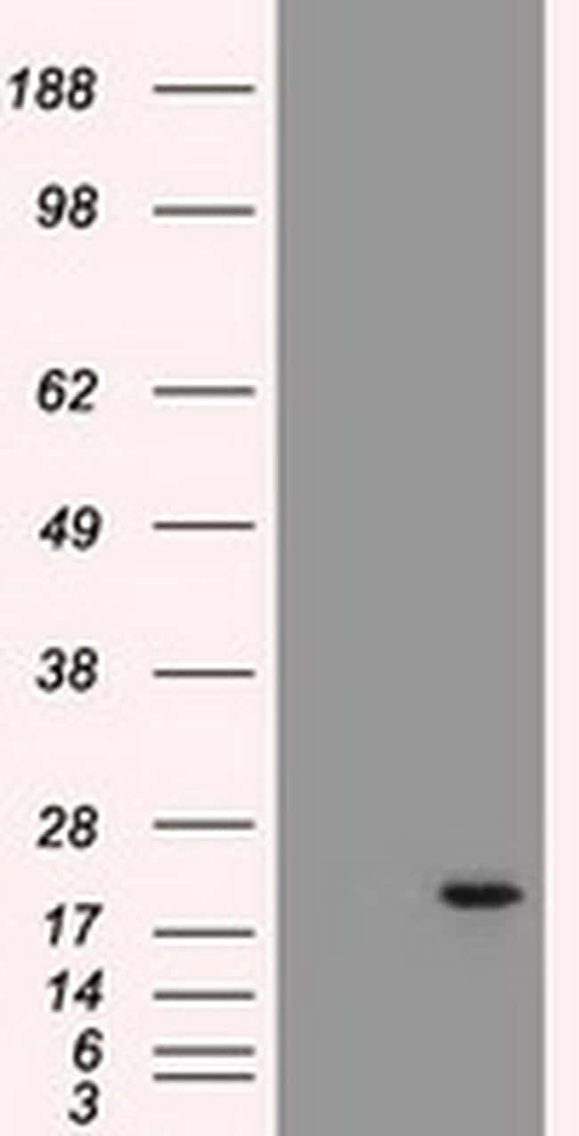 Adenylate Kinase 1 Antibody in Western Blot (WB)