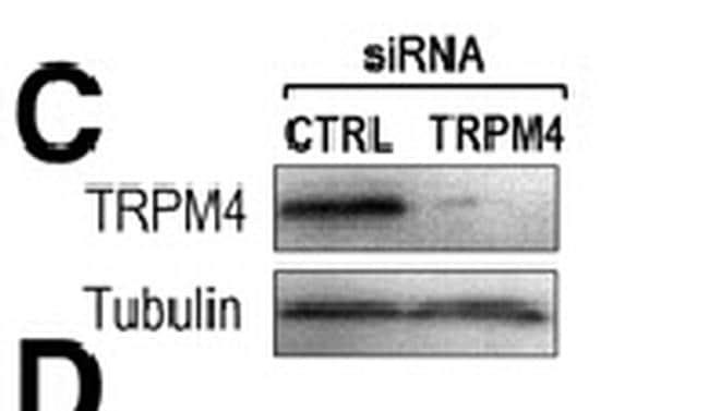 TRPM4 Antibody in Western Blot (WB)
