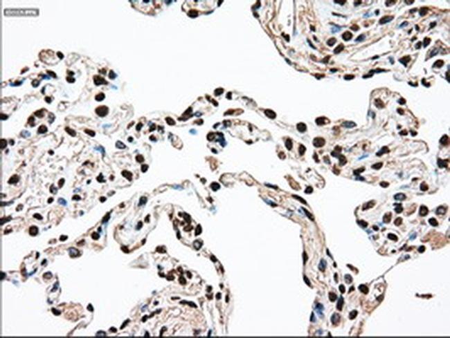 SSB Antibody in Immunohistochemistry (Paraffin) (IHC (P))