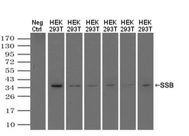 SSB Antibody in Western Blot (WB)