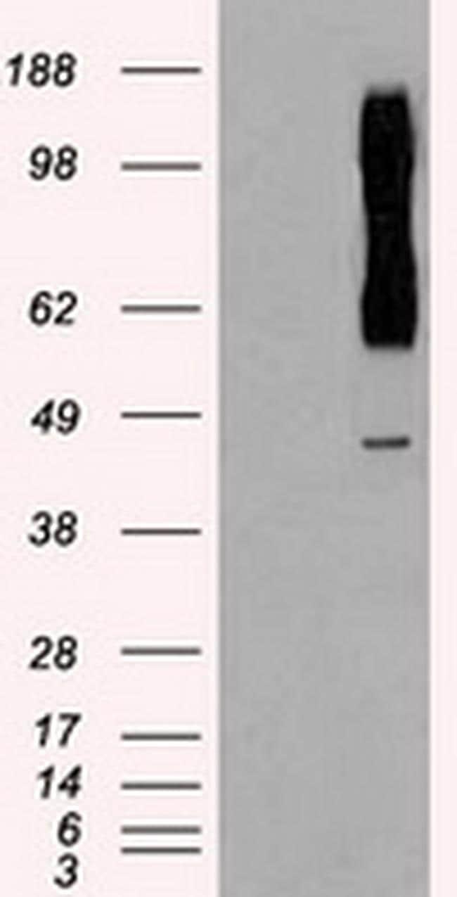 RAD9 Antibody in Western Blot (WB)