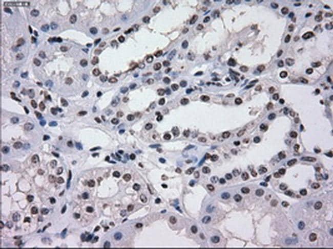 SATB1 Antibody in Immunohistochemistry (Paraffin) (IHC (P))