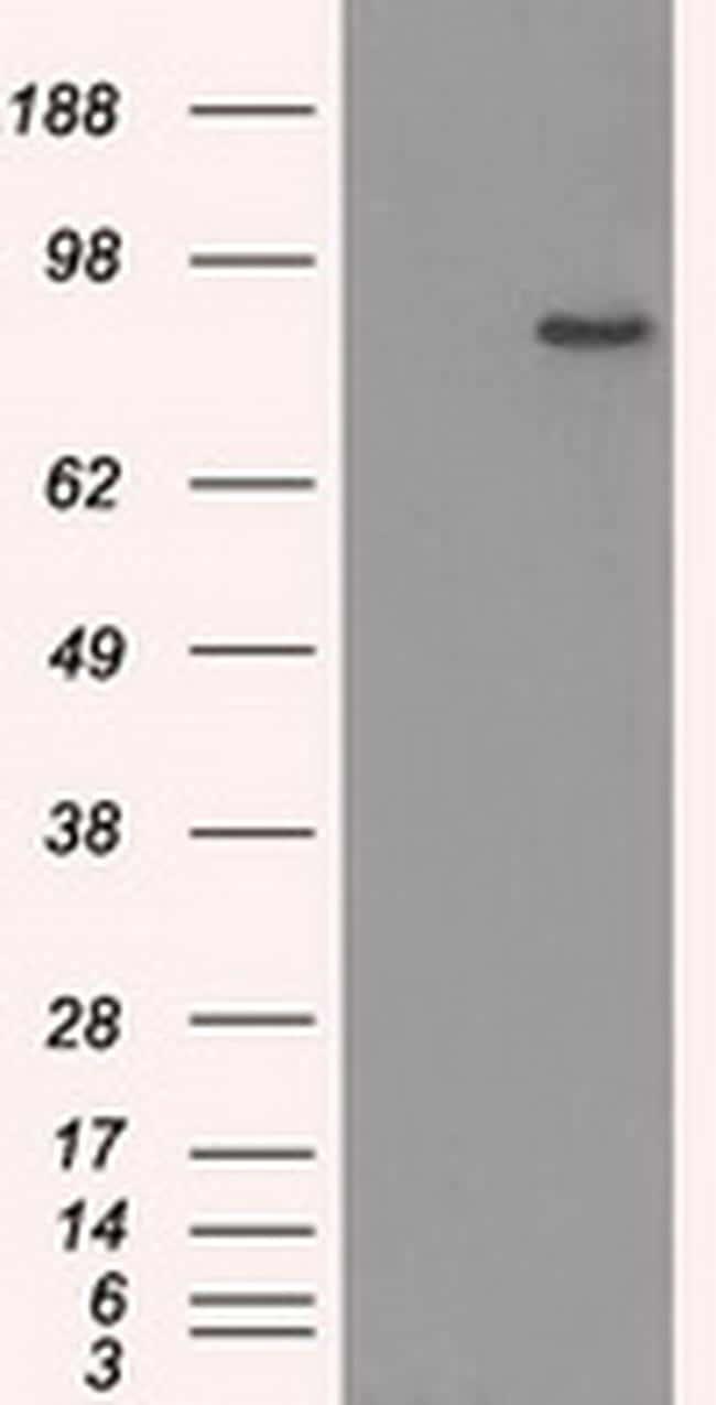 SATB1 Antibody in Western Blot (WB)
