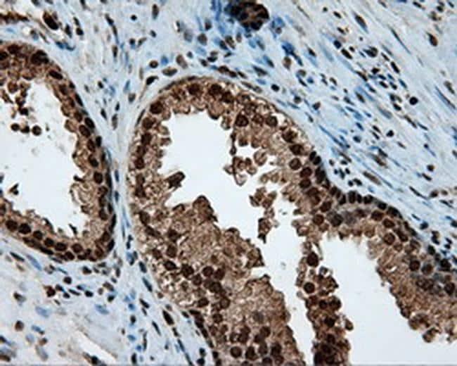 LTA4H Antibody in Immunohistochemistry (Paraffin) (IHC (P))