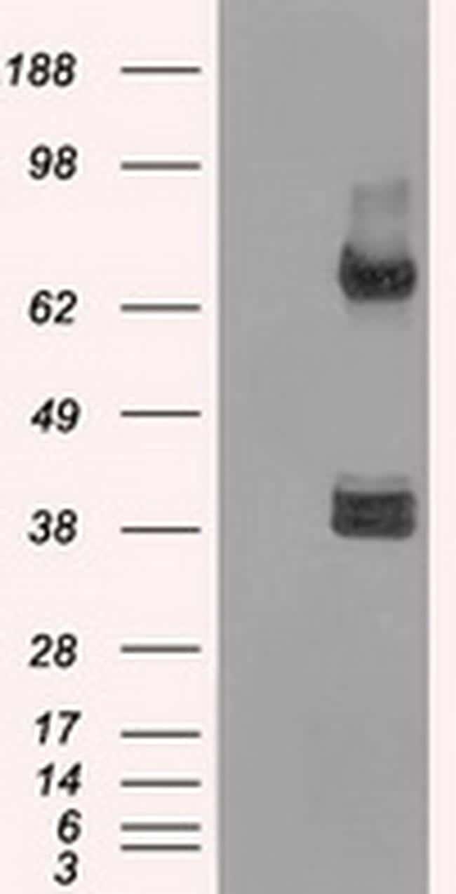 XRCC4 Antibody in Western Blot (WB)