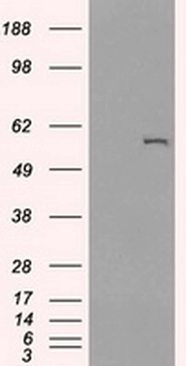 CYP2E1 Antibody in Western Blot (WB)