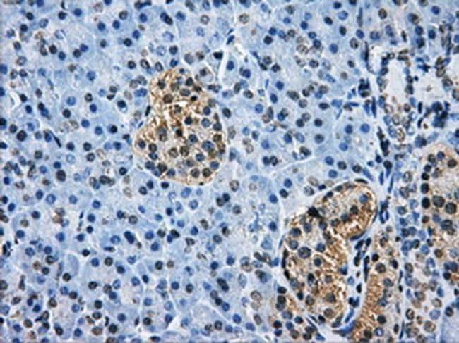 HDAC10 Antibody in Immunohistochemistry (Paraffin) (IHC (P))