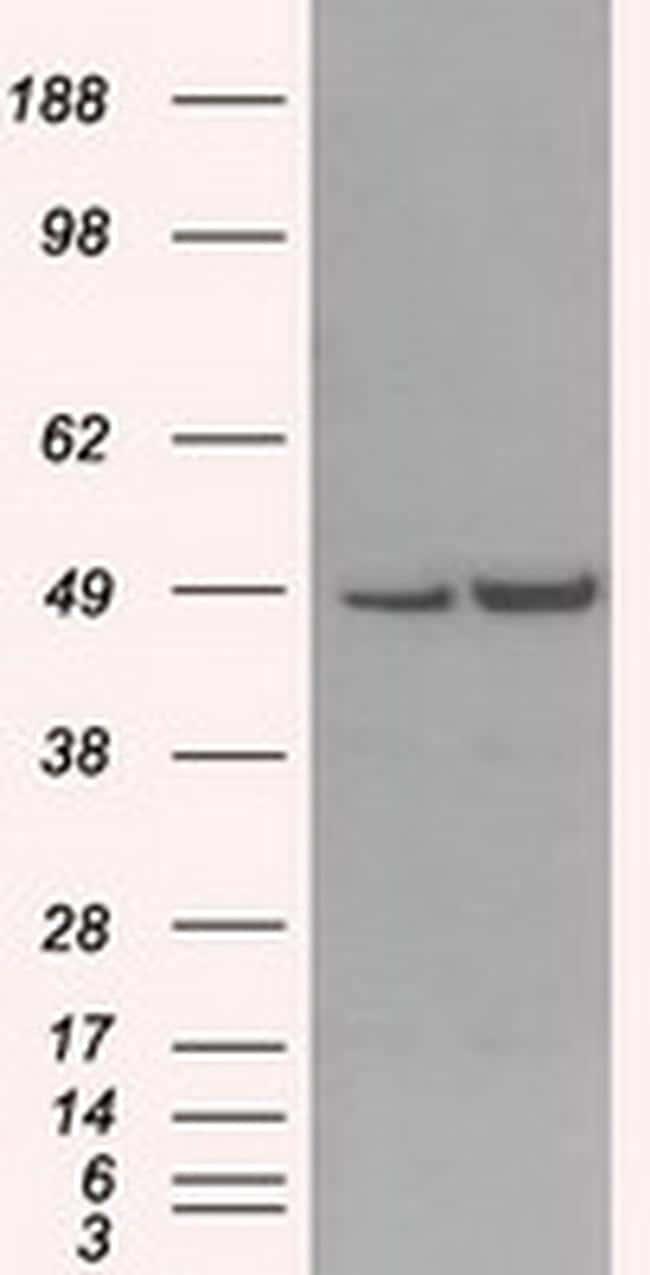 MAN1 Antibody in Western Blot (WB)