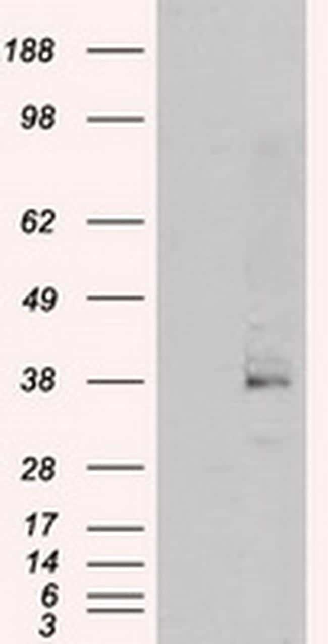 Serine racemase Antibody in Western Blot (WB)