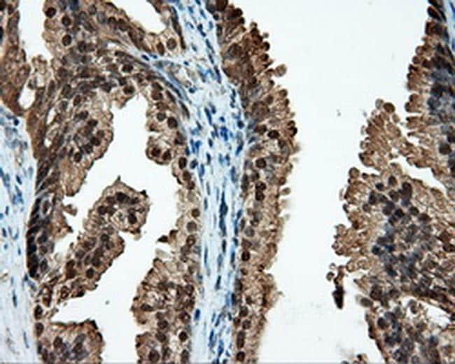 CUGBP1 Antibody in Immunohistochemistry (Paraffin) (IHC (P))