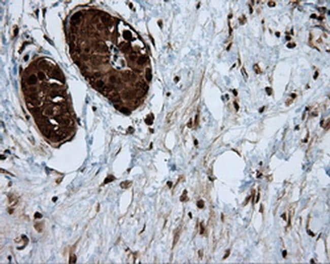 ATP Citrate Lyase Antibody in Immunohistochemistry (Paraffin) (IHC (P))