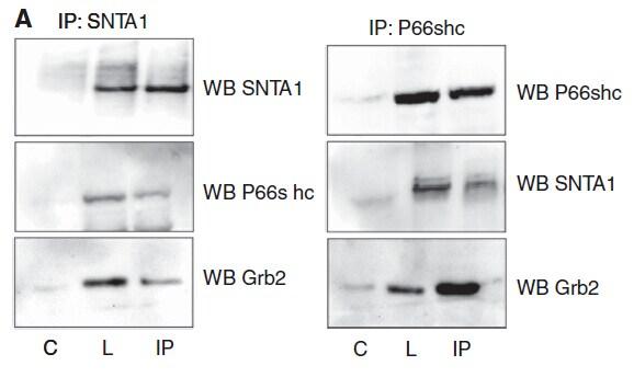 SHC Antibody in Western Blot (WB)