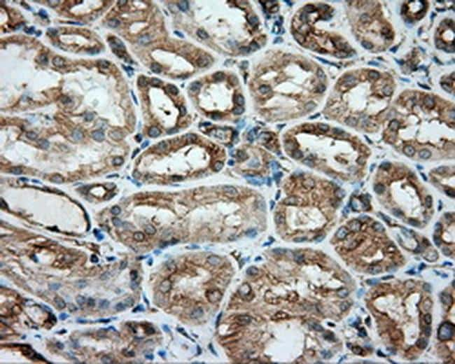 TUBA8 Antibody in Immunohistochemistry (Paraffin) (IHC (P))