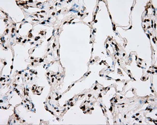 BMAL1 Antibody in Immunohistochemistry (Paraffin) (IHC (P))