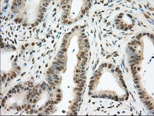 PDE4A Antibody in Immunohistochemistry (Paraffin) (IHC (P))