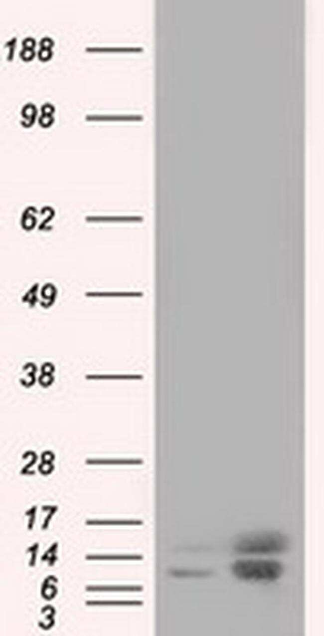 Profilin 1 Antibody in Western Blot (WB)