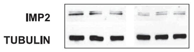 IGF2BP2 Antibody in Western Blot (WB)