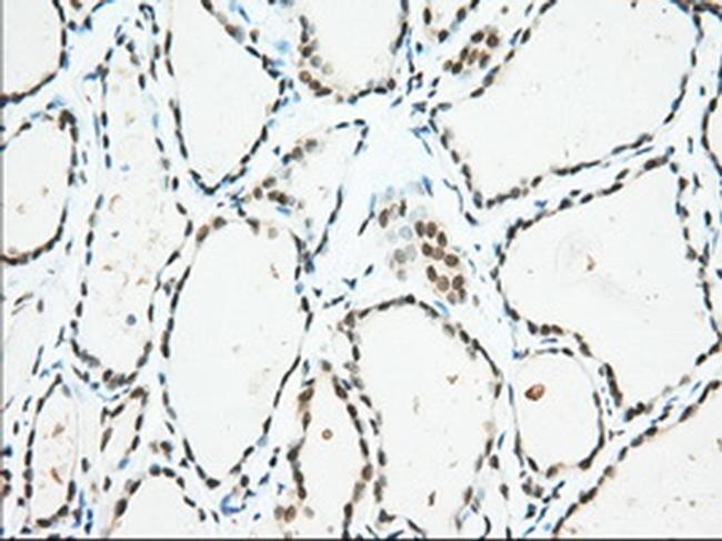 USP5 Antibody in Immunohistochemistry (Paraffin) (IHC (P))