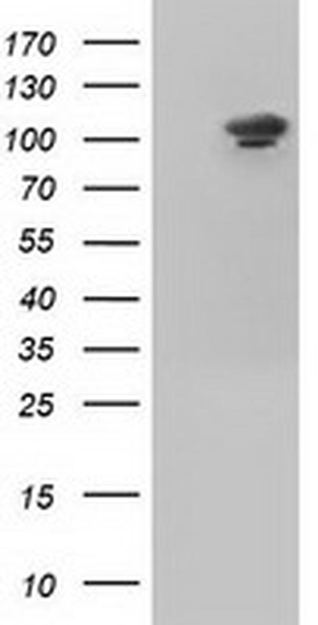 USP5 Antibody in Western Blot (WB)