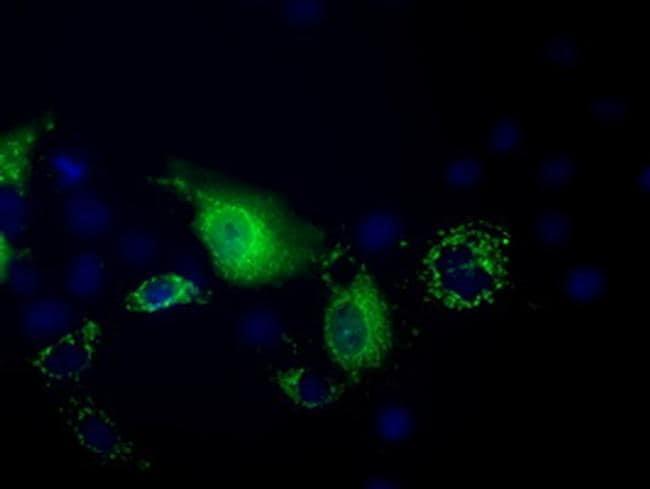 PANK2 Antibody in Immunocytochemistry (ICC)