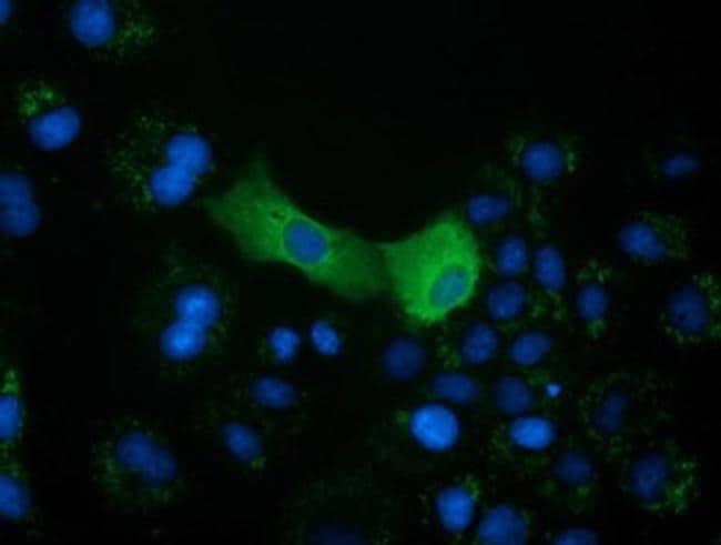CRYM Antibody in Immunocytochemistry (ICC)