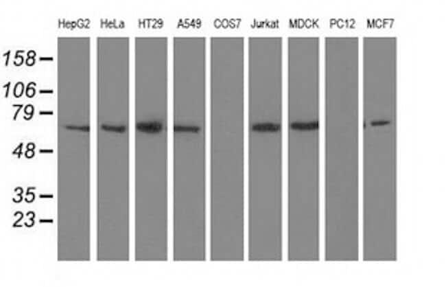 BTN1A1 Antibody in Western Blot (WB)