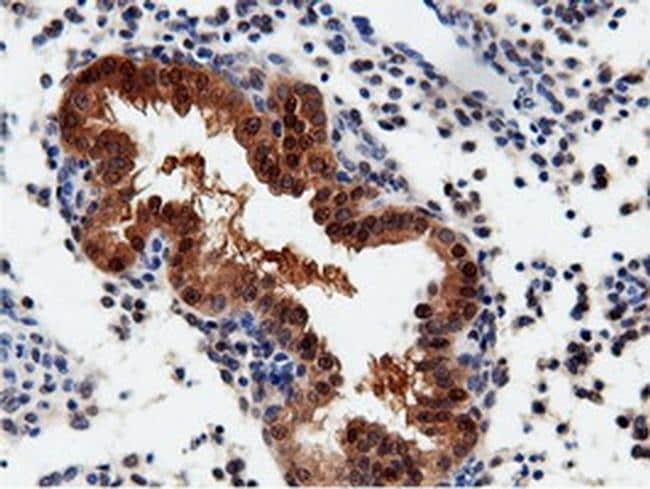 QPRT Antibody in Immunohistochemistry (Paraffin) (IHC (P))