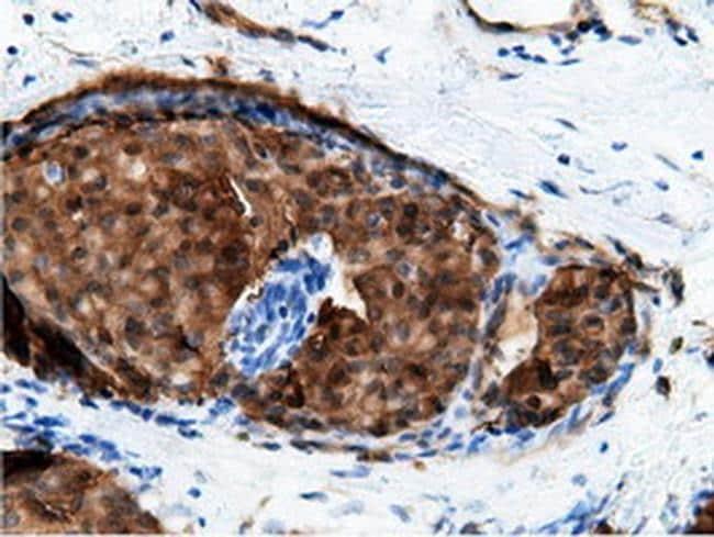 EPHX2 Antibody in Immunohistochemistry (Paraffin) (IHC (P))