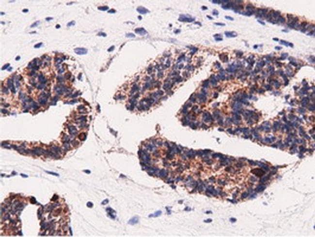 Adenylate Kinase 5 Antibody in Immunohistochemistry (Paraffin) (IHC (P))