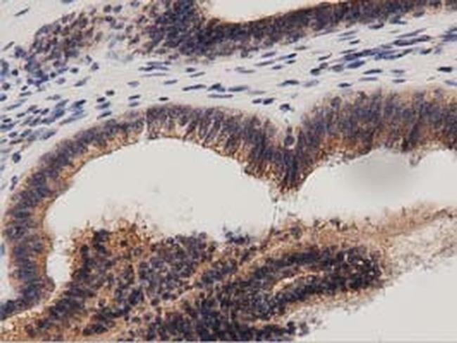 PRKD2 Antibody in Immunohistochemistry (Paraffin) (IHC (P))