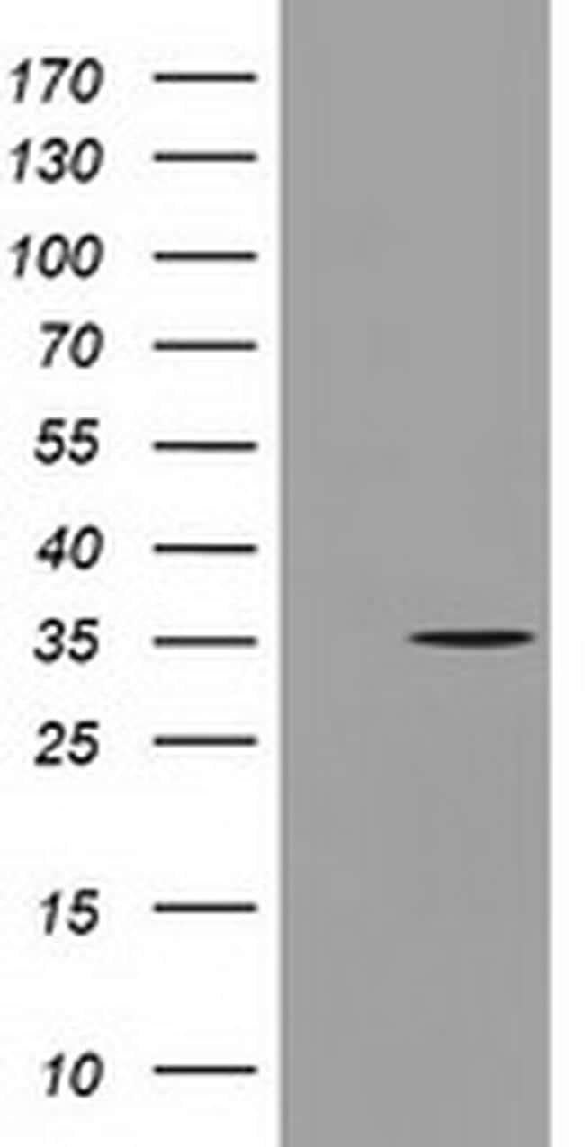 GGPS1 Antibody in Western Blot (WB)