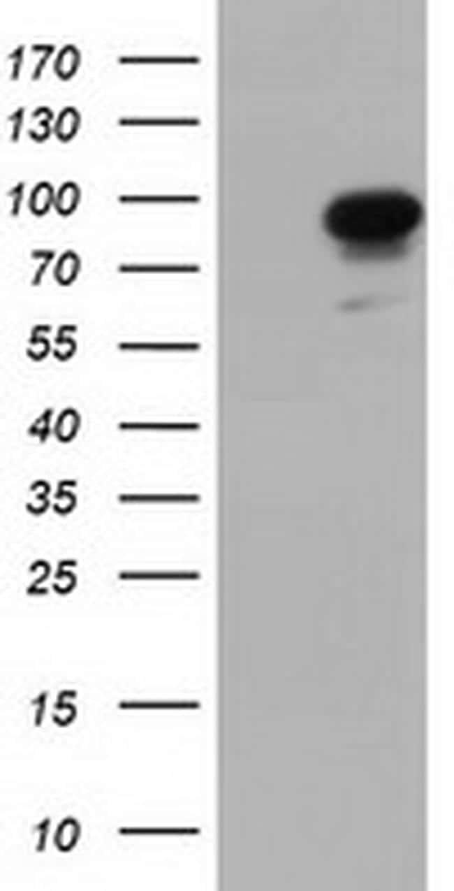 PIK3AP1 Antibody in Western Blot (WB)