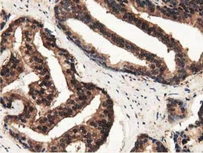 GSTT2 Antibody in Immunohistochemistry (Paraffin) (IHC (P))