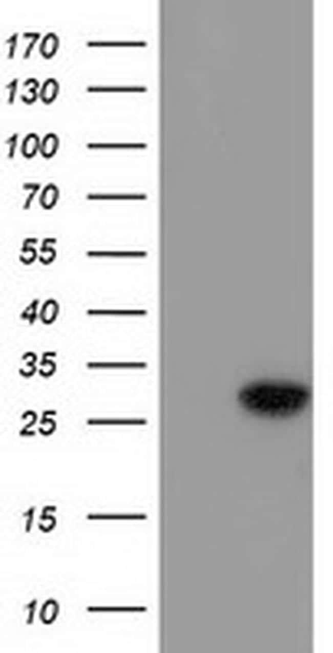 BIN3 Antibody in Western Blot (WB)