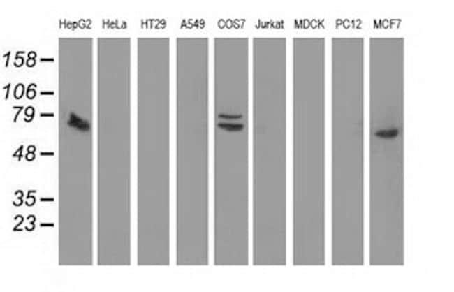 SAMHD1 Antibody in Western Blot (WB)