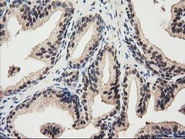 RNH1 Antibody in Immunohistochemistry (Paraffin) (IHC (P))
