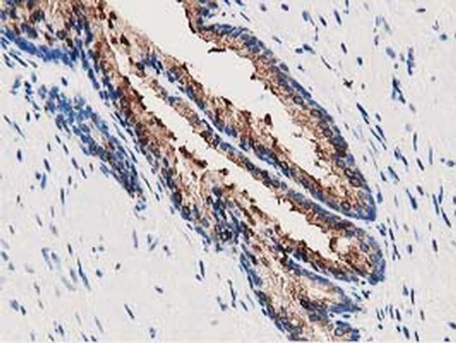 Annexin A3 Antibody in Immunohistochemistry (Paraffin) (IHC (P))